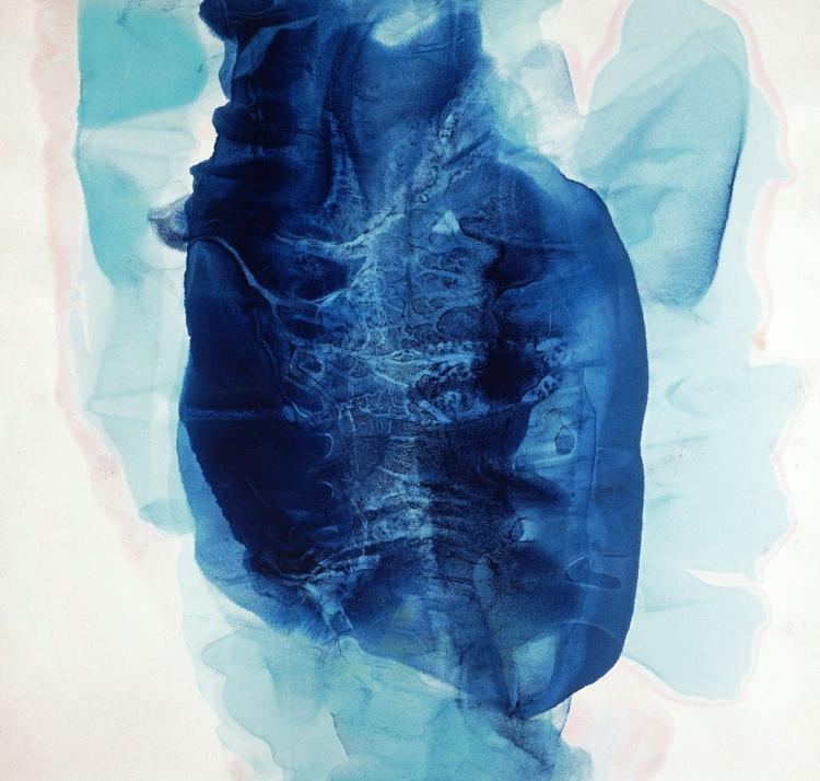 Coronary Blues - Image 0
