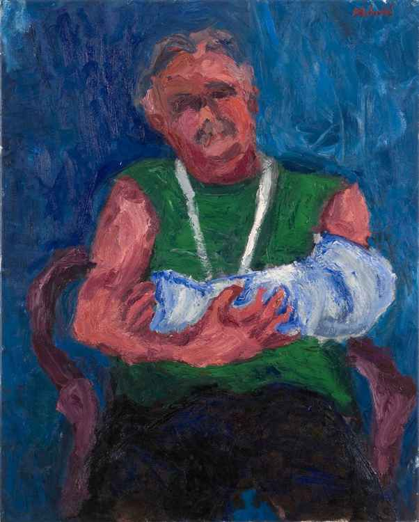 Man with broken arm -